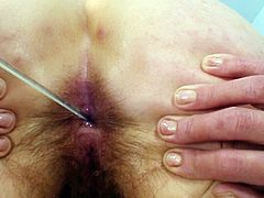 Its been a long time since mature slut had her last gyno exam